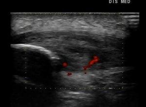 jumper's knie echografie kniepijn tendinose