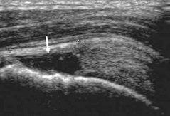 scheur-supraspinatus-pees-schouder-pijn