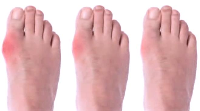 soda voeten