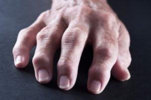 hand artrose veranderlingen zwelling