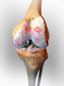 knieslijtage artrose, kraakbeen,