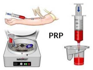 PRP protocol