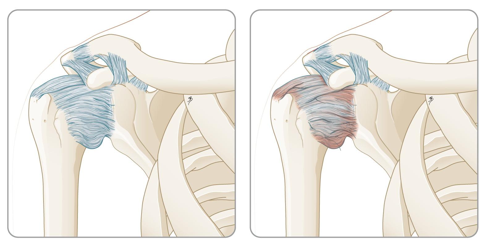 Wat is een frozen shoulder