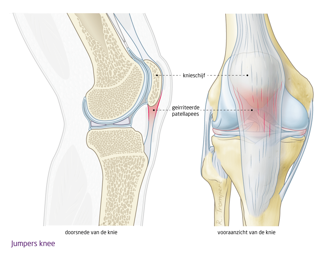 jumpers knee echozorg