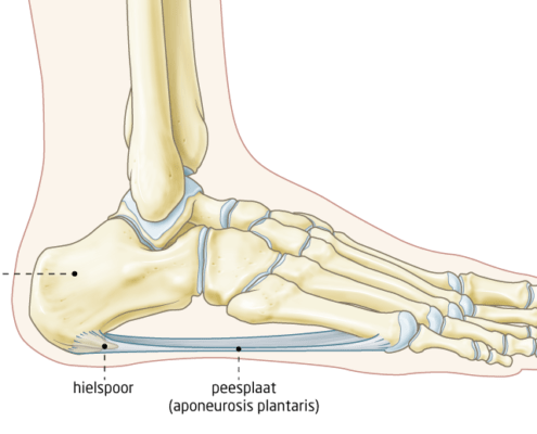 Hielspoor anatomie
