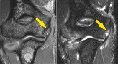 MRI-tenniselleboog