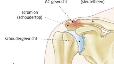 osteofyten-AC-gewricht