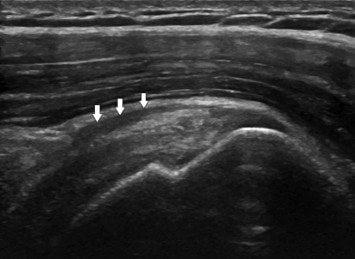 echografie-slijmbeursontsteking-schouder