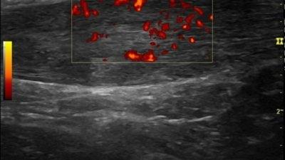 echografie-achillepees-ontsteking