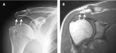 röntgen-slijmbeursontsteking